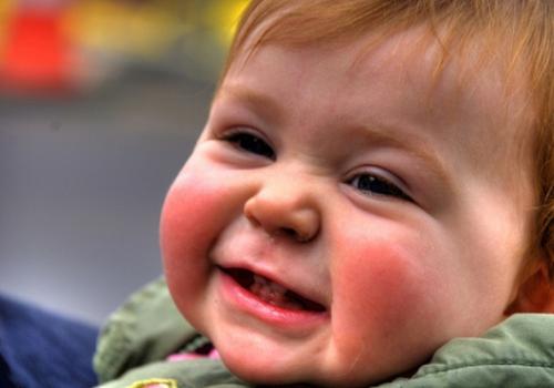 Атопический дерматит у взрослых симптомы, причины,